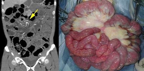 """""""Whirl Sign"""" of Primary Small Bowel Volvulus - The Western"""